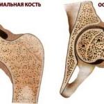 Профилактика остеопороза, или как прожить без переломов