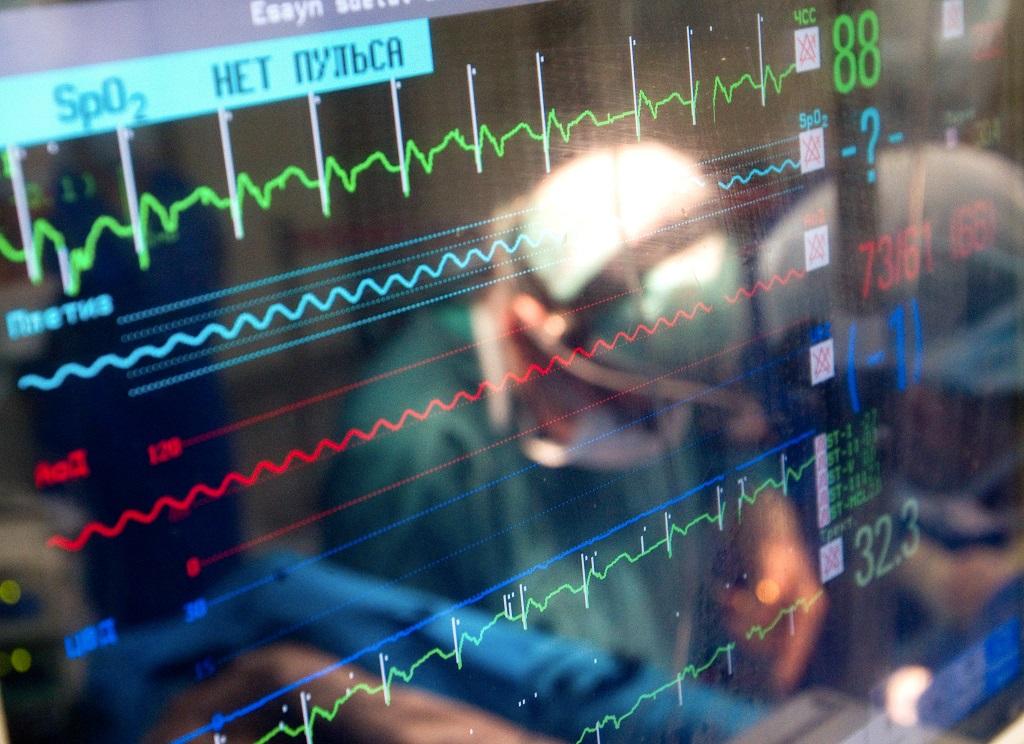 912234 19.05.2011 Монитор, показывающий параметры жизнедеятельности пациента во время операции по пересадке сердечного клапана человеку из биоматериала, взятого от животного. Михаил Фомичев/РИА Новости